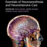 [PDF] [EPUB] Gupta and Gelb's Essentials of Neuroanesthesia and Neurointensive Care Download